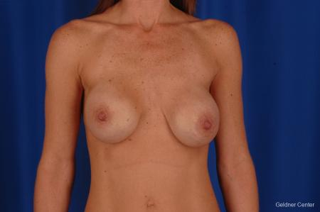 Breast Augmentation: Patient 158 - Before Image 1