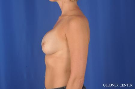Chicago Breast Augmentation 11868 -  After Image 4