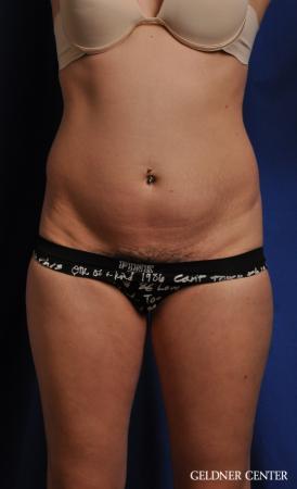 Liposuction: Patient 41 - Before Image 1