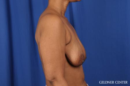 Breast Lift: Patient 38 - Before Image 2