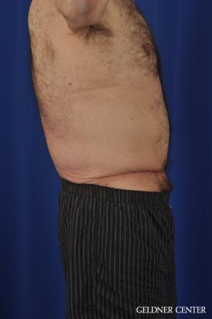 Abdominoplasty For Men: Patient 3 - Before Image 3
