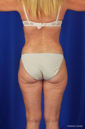 Tummy Tuck: Patient 2 - After Image 4