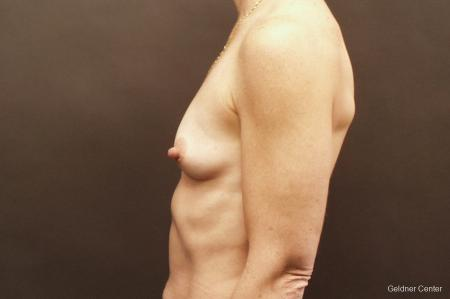 Chicago Breast Augmentation 2635 - Before Image 4