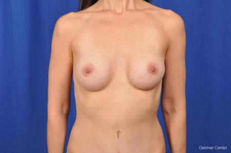 Chicago Breast Augmentation 2376 -  After Image 1