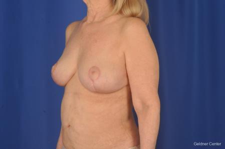 Complex Breast Augmentation: Patient 2 - After Image 4