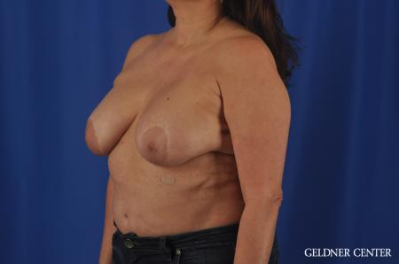 Breast Lift Hinsdale, Chicago 11863 - Before and After Image 4