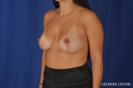 Breast Lift: Patient 23 - After Image 5