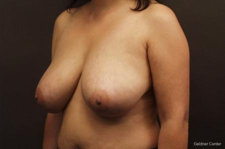 Chicago Breast Reduction 2416 - Before and After Image 4