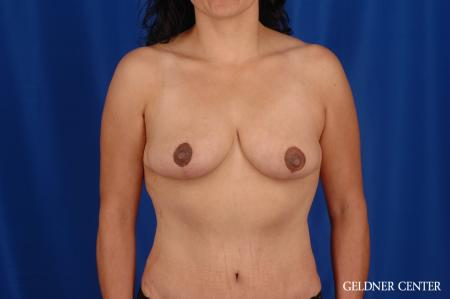 Breast Reduction Hinsdale, Chicago 2630 - After Image