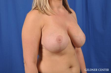 Breast Lift: Patient 40 - After Image 3