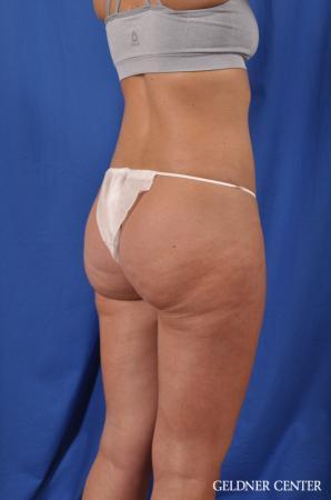 Liposuction: Patient 38 - After Image 4