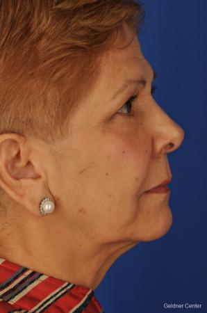 Neck Lift: Patient 1 - Before Image 2