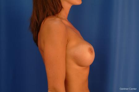 Complex Breast Augmentation Streeterville, Chicago 2620 - Before Image 2