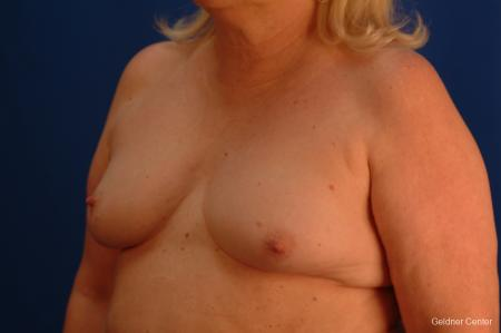 Complex Breast Augmentation Hinsdale, Chicago 2430 - Before and After Image 4