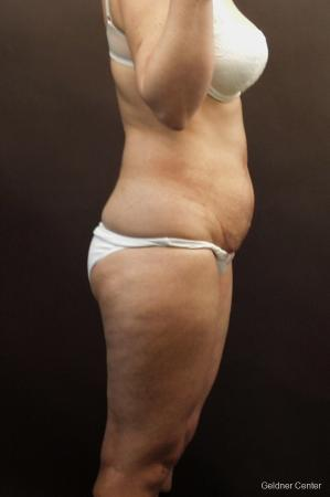Liposuction: Patient 9 - Before Image 3