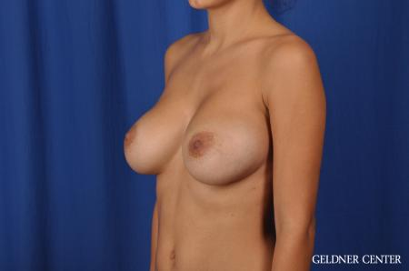 Breast Augmentation: Patient 134 - After 4