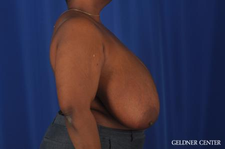 Chicago Breast Reduction 11871 - Before Image 3