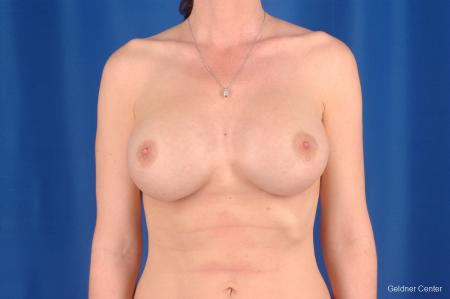 Complex Breast Augmentation Streeterville, Chicago 2620 -  After Image 1