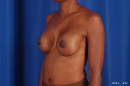 Chicago Breast Augmentation 2293 -  After Image 5