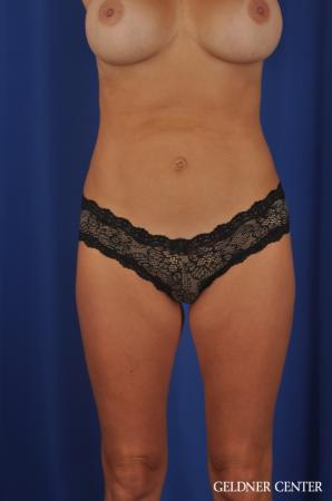 Liposuction: Patient 29 - After Image 1