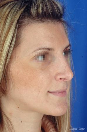 Rhinoplasty: Patient 5 - After Image 2