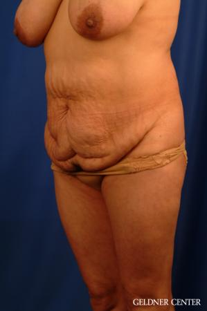 Vaser lipo patient 2629 before and after photos - Before and After Image 5