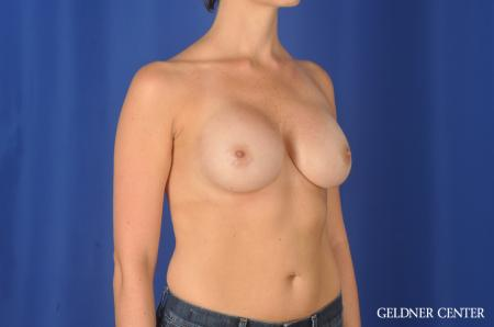 Chicago Breast Augmentation 11868 -  After Image 2