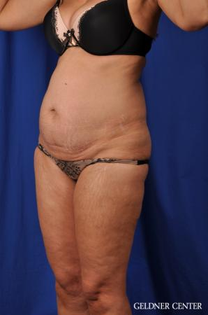 Lipoabdominoplasty: Patient 5 - Before and After 4