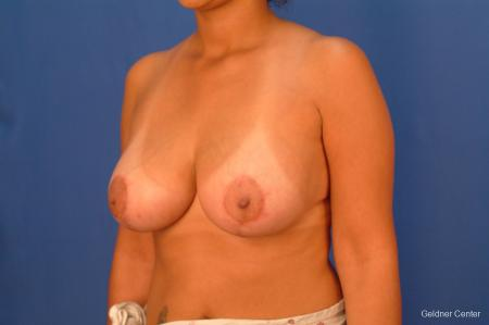 Breast Reduction Lake Shore Dr, Chicago 2417 -  After Image 3