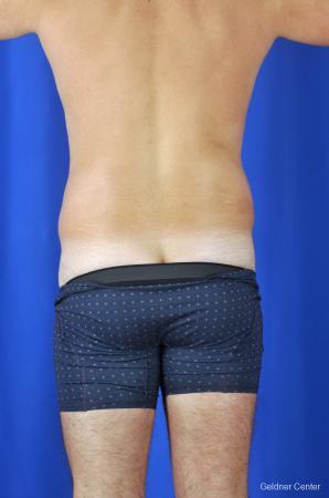Liposuction For Men: Patient 4 - Before Image 4