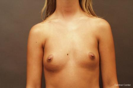 Breast Augmentation Lake Shore Dr, Chicago 2533 - Before Image 1