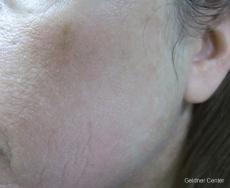 Laser: Patient 6 - After Image