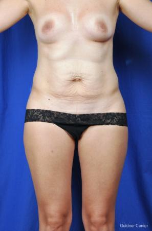 Tummy Tuck: Patient 1 - Before Image
