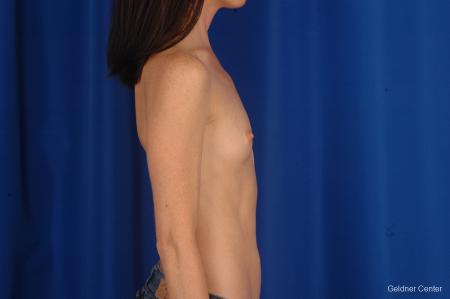 Breast Augmentation Hinsdale, Chicago 2311 - Before Image 2