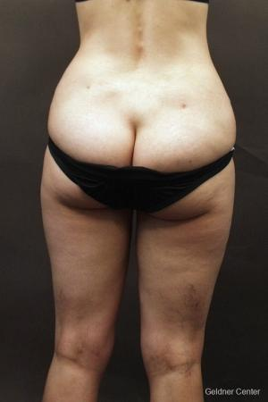 Liposuction: Patient 8 - Before and After Image 4