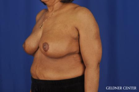 Breast Reduction: Patient 35 - After Image 4