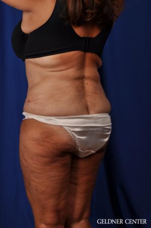 Liposuction: Patient 24 - After Image 4