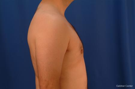 Gynecomastia: Patient 4 - After Image 2