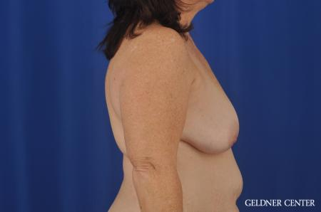 Breast Lift Hinsdale, Chicago 3232 - Before Image 2