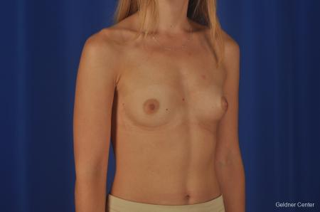 Breast Augmentation: Patient 149 - Before Image 2