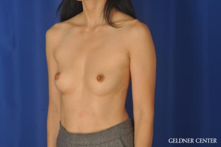 Breast Augmentation: Patient 176 - Before and After Image 4