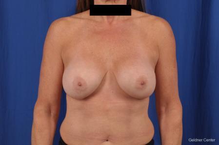 Complex Breast Augmentation: Patient 35 - Before Image 1
