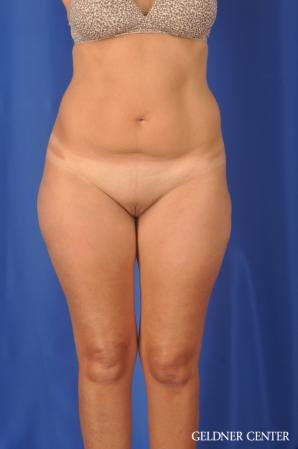 Liposuction: Patient 47 - Before Image 1