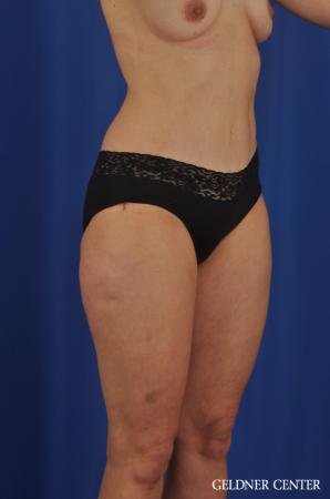 VASER® Lipo: Patient 11 - Before and After Image 4