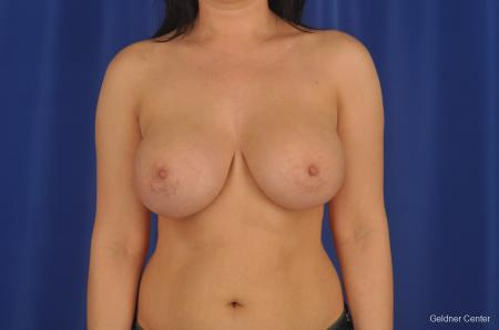 Breast Augmentation Lake Shore Dr, Chicago 2283 -  After Image 1