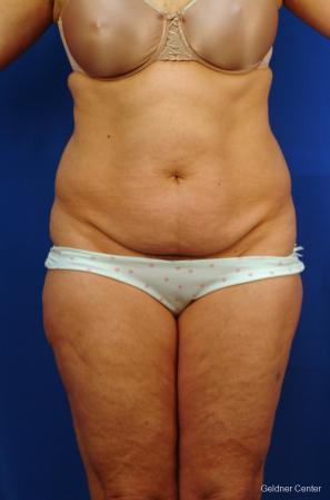 Liposuction: Patient 9 - Before Image