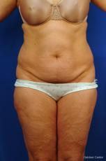 Liposuction: Patient 10 - Before Image