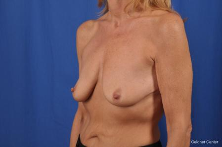 Breast Augmentation: Patient 154 - Before and After Image 4