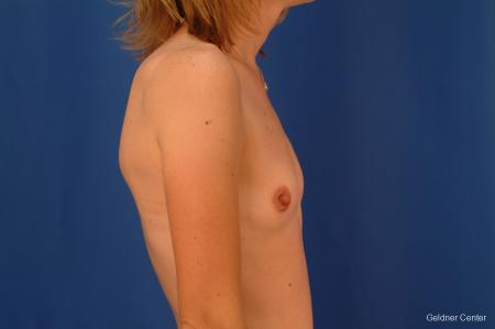 Breast Augmentation Streeterville, Chicago 2530 - Before Image 3