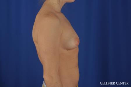 Chicago Breast Augmentation 5468 - Before Image 3